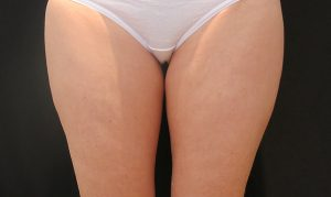 coolsculpting for thighs