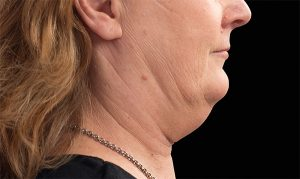 coolsculpting for double chins