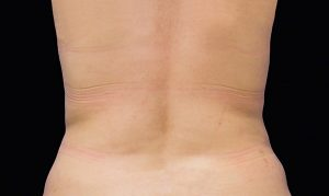 coolsculpting for love love handles