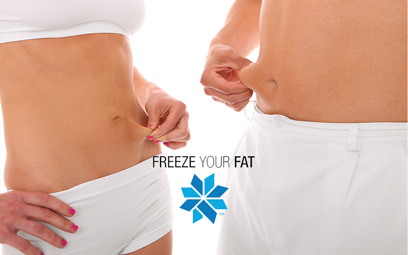 best coolsculpting specials